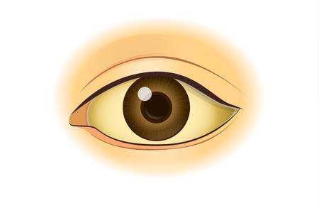 Der Vergleich zwischen normalen Hautmenschen und Gelbfärbung durch Gelbsucht. Illustration zu gesundheitlichen Problemen.