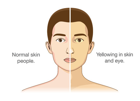 The Comparison between normal people and yellowing of the eyes and skin. Illustration about health problems.