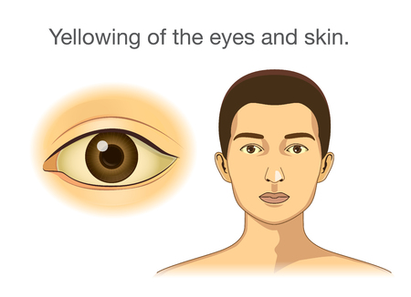 Yellowing of the eyes and skin. Illustration about abnormal symptom of human body from health problems. Illustration