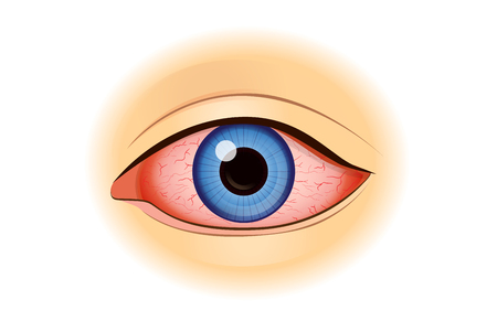 Eye redness symptom of human isolated on white. Illustration about health problem. Vectores