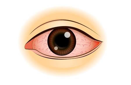 Eye redness symptom of Asian people isolated on white. Illustration about health problem.
