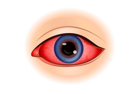 Síntomas de uveítis o inflamación del ojo aislada en blanco. Ilustración sobre el problema de la visión. Ilustración de vector