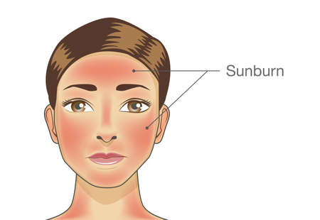 Burned skin on facial of woman and neck. Illustration about danger of Ultraviolet radiation.