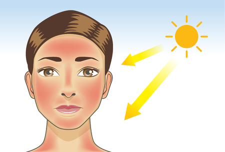 UV ray from sun made the redness appear on woman facial and neck skin. Illustration about danger of ultraviolet. Çizim