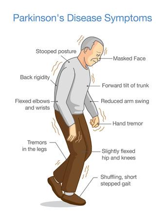 Parkinson-Krankheit Symptome. Illustration über Gesundheitsproblem älterer Menschen.