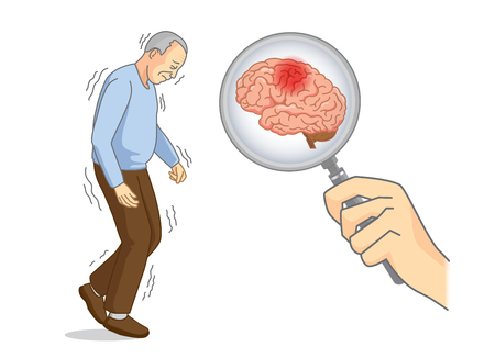 Hand holding Magnifying glass for looking brain of Parkinson's disease patient. Illustration about elderly health care. Иллюстрация
