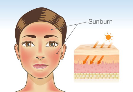Skin layer of woman which appear redness on facial and neck from sunburn. Illustration about danger of Ultraviolet radiation. Ilustração