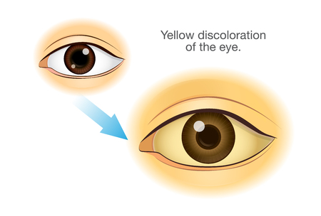 Normal human eye changing to Yellowing. Illustration about symptom from health problem and illness.