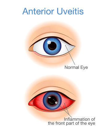 Comparison between eye have the symptoms of anterior uveitis and Normal. Illustration about of eye diseases.