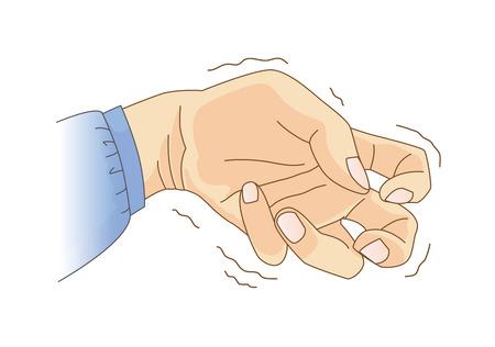 El dedo y la muñeca se doblan y tiemblan. Ilustración sobre el síntoma y el signo de la enfermedad de Parkinson y la epilepsia.