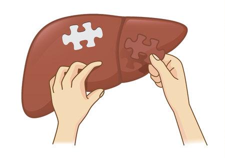 Hand , die letzte Stück Puzzlestück für die Produkte hält . Medizinische Illustration für Behandlung auf Gefahr Gefahr Vektorgrafik