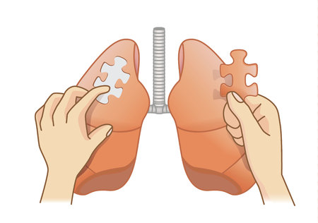 Hand holding last piece of jigsaw puzzle for add on the lung. Medical concept illustration about treatment for danger disease.