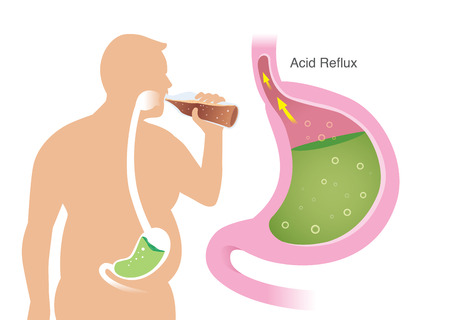 Silhouette of Fat People while drink carbonated beverages have acid reflex in stomach. Illustration about Gastroesophageal reflux disease.