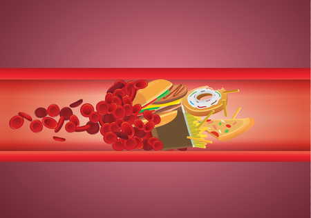 Flujo de sangre bloqueado de la comida rápida que tienen alto contenido de grasa y colesterol. Ilustración sobre comer poco saludable.