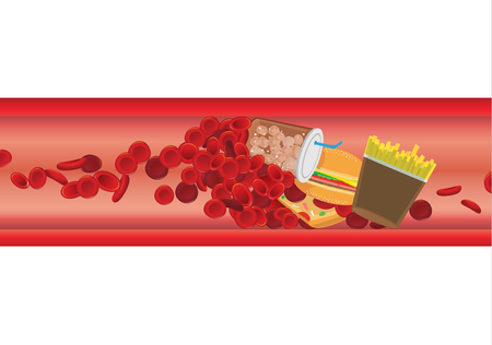 Die Blutkörperchen im Gefäß sind durch fettreiche Lebensmittel blockiert. Illustration über Herz-Kreislauf-Erkrankungen von Cholesterin und Fett. Vektorgrafik
