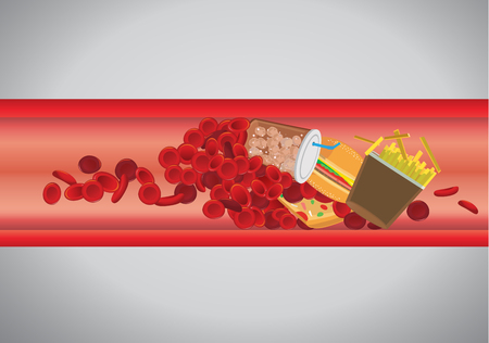 Blood vessel is blocked by hamburger and fast food. Concept illustration about danger of Cholesterol and fat. Illustration