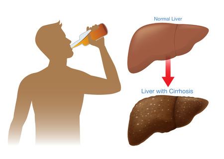 Normal liver of human change to the cirrhosis because of drinking alcohol. Illustration about health and consume.