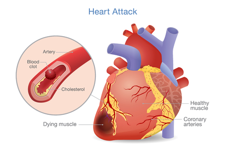 Illustration of Arterial thrombosis is a blood clot that develops to heart attack. Causes and risk factors for health problem.