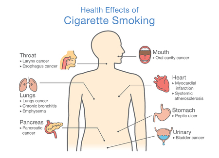 Diagram about health effect of cigarette smoking. Illustration about risk of smokers. Illusztráció