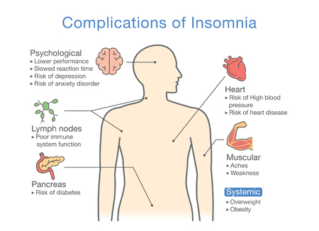 Diagram of Complications of Insomnia. illustration about effects of health problem. Vector illustration. Vectores