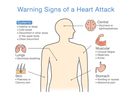 Diagram about warning signs of a heart attack. Illustration about medical diagram for diagnose a disease or condition. Vector illustration.