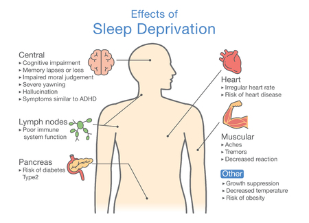 Diagram of Effects of Sleep deprivation. Illustration about disease diagnosis. Vector illustration. Stock Illustratie