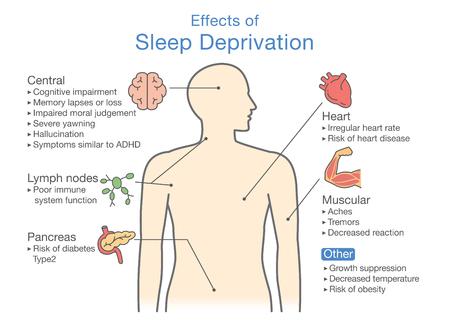 Diagrama de efectos de la privación del sueño. Ilustración sobre el diagnóstico de la enfermedad. Ilustración vectorial