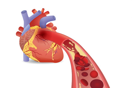 Blood cell cant flow into human heart because clogged arteries by fats. Illustration about artery disease and medical concept. Illustration