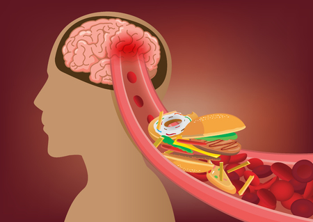 Blood cant flow into human brain because fast food made clogged arteries. Illustration about stoke disease and medical concept.