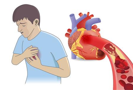L'uomo ha dolore toracico da cellule del sangue non può fluire nel cuore da grassi. Illustrazione su malattia coronarica e concetto medico.