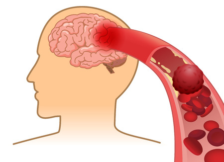 Blood cell can't flow into human brain because clogged arteries by blood clot. Illustration about Stroke and medical concept.