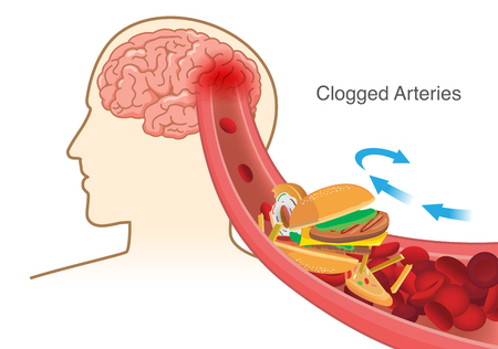 Hamburger and Pizza and French fries block red blood cell cause clogged in artery before into brain. Illustration about stoke disease.