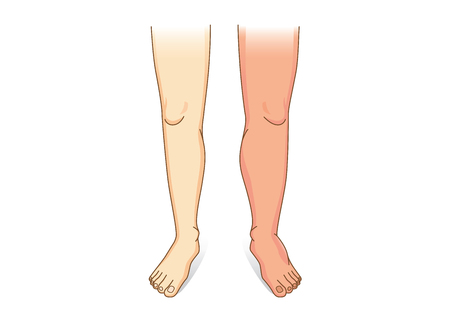 Human Leg swelling in front view. Illustration about the diseases and conditions of fluid gathers in foot and leg. Vectores