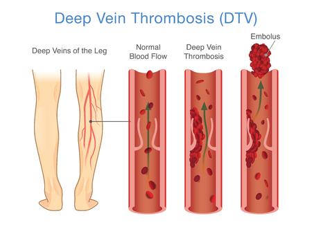 Diagrama médico de trombosis venosa profunda en el área de la pierna. Ilustración sobre anormalmente del flujo sanguíneo.