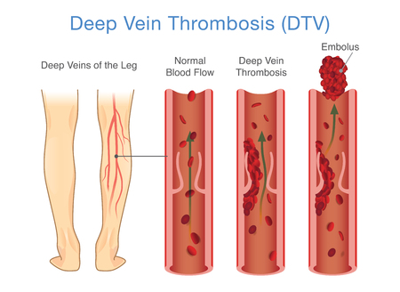 Medizinisches Diagramm der tiefen Venenthrombose am Beinbereich. Abbildung ungefähr ungewöhnlich des Blutstroms.