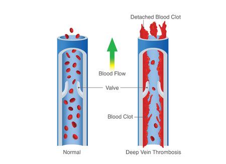 Medical Diagram of Deep Vein Thrombosis.