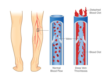 Medical diagram of deep vein thrombosis in leg area.