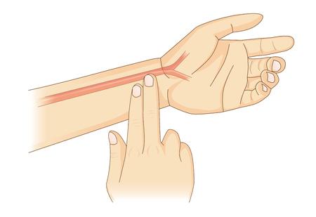 Vérification manuelle de la fréquence cardiaque, deux doigts sont placés au poignet.