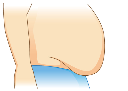 Illustration of excess abdominal fat in side view on isolated.