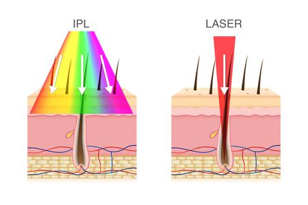 Der Unterschied zwischen IPL-Licht und Laser bei der Haarentfernung. Illustration über Beauty-Technologie.
