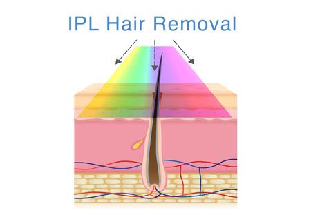 Utilizzo della luce IPL per la depilazione sulla pelle umana. Illustrazione sulla tecnologia della bellezza.