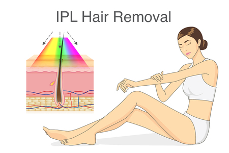 IPL light for hair removal on skin layer and beauty woman touching her skin. Illustration about cosmetic technology. Vettoriali