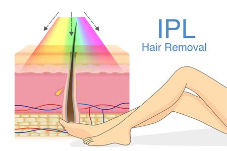 Luce IPL per depilazione su strato cutaneo e gamba donna. Illustrazione sulla tecnologia cosmetica. Archivio Fotografico - 99972077