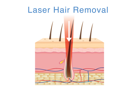Laser light for hair removal on skin layer. Illustration about cosmetic technology.