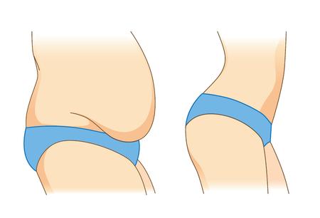 Vet en slank van lichaamsvrouw in blauwe bikini. Illustratie over gewicht en andere vorm. Vector Illustratie