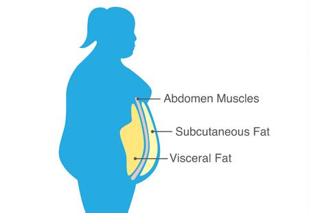 Tłuszcz trzewny i tłuszcz podskórny gromadzący się wokół talii kobiety. Ilustracja o schemacie medycznym.