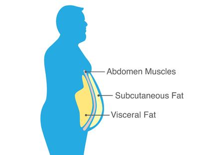Grasa visceral y grasa subcutánea que se acumula alrededor de la cintura. Ilustración sobre diagrama médico. Ilustración de vector