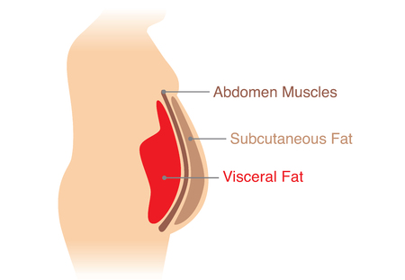 Location of Visceral fat stored within the abdominal cavity. Illustration about medical diagram. Vectores