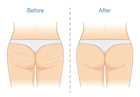Before and after reduction stretch marks skin at Buttocks and thighs. Illustration anout health care.