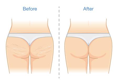 Vor und nach der Reduktion dehnt sich die Haut an Gesäß und Oberschenkeln. Abbildung über die Gesundheitsversorgung. Vektorgrafik